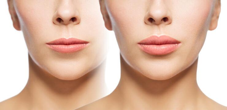 ankara dudak estetiği